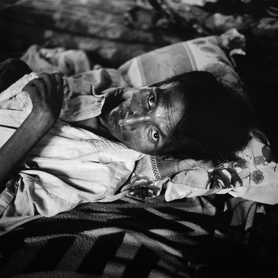 Man who is is HIV positive - Myanmar : michael coyne documentary photographer and photojournalist