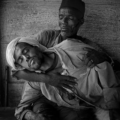 michael coyne documentary photographer and photojournalist: Man with Malaria - Ethiopia